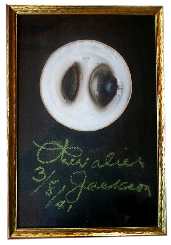 Chevalier Jackson Chalk Talk illustration of a foreign body (apparently a marble) caught in a bronchus. From the estate of Dr. B. Thomas McMahon, Courtesy of Dr. Nancy W. McMahon. (Jean Walton photograph)